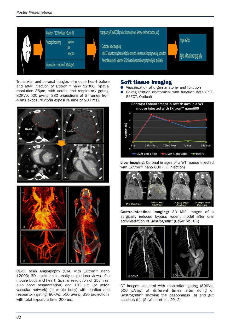 Poster Presentations  Transaxial and coronal images of mouse heart before and after injection of Exitron    nano 12000. Sp...