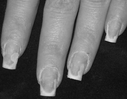 Chapter 2 Nail And Skin Diseases Disorders Cont