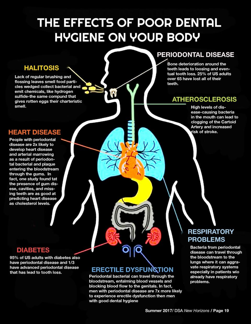 THE EFFECTS OF POOR DENTAL HYGIENE ON YOUR BODY PERIODONTAL DISEASE HALITOSIS Lack of regular brushing and flossing leaves...