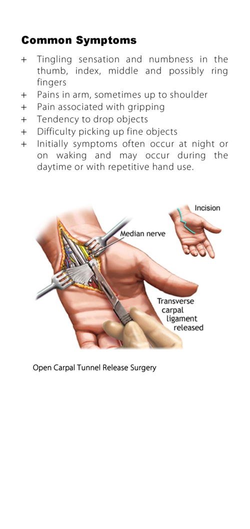 What is carpal tunnel syndrome   Common Symptoms  The carpal tunnel is the narrow passage that runs between the wrist and ...
