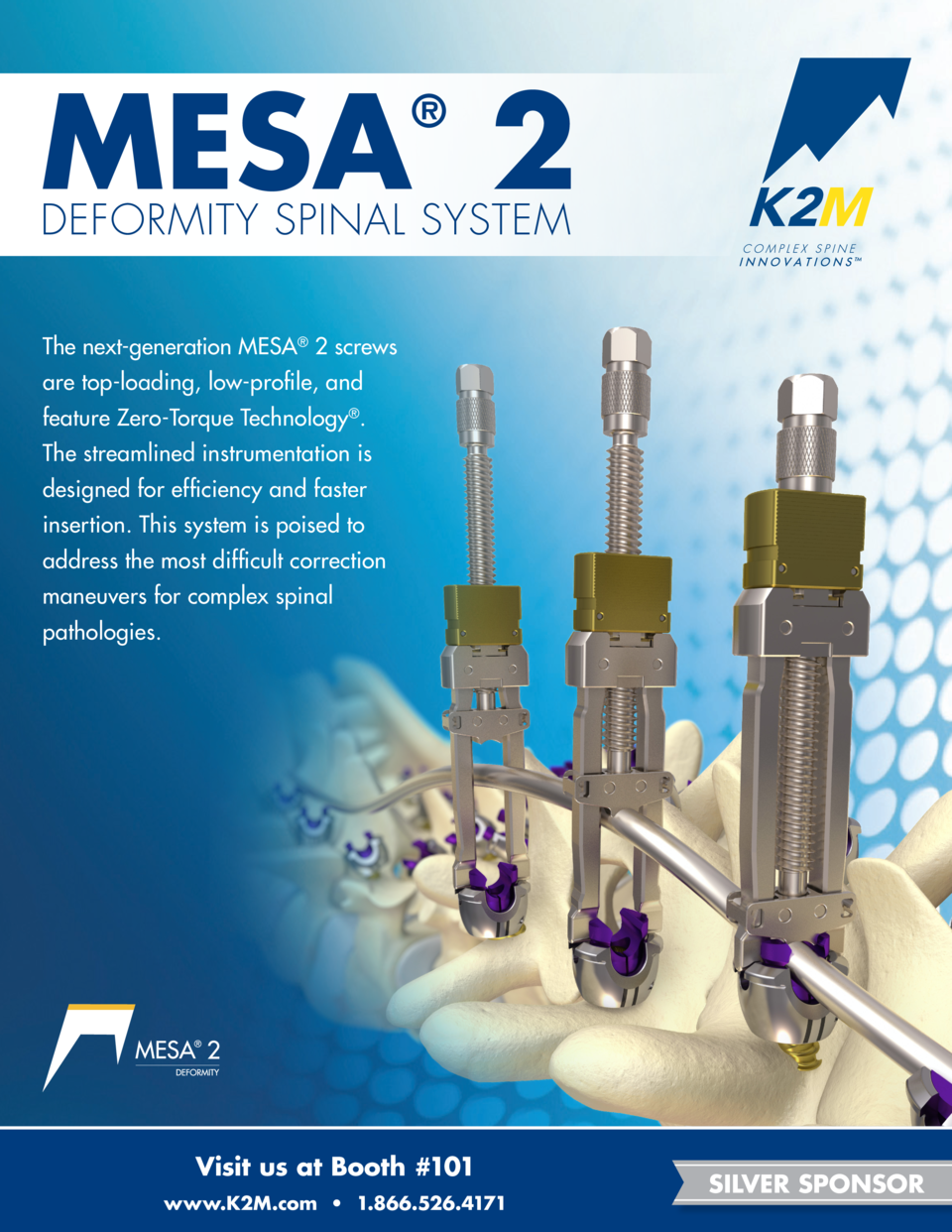 MESA 2     DEFORMITY SPINAL SYSTEM The next-generation MESA   2 screws are top-loading, low-profile, and feature Zero-Torq...