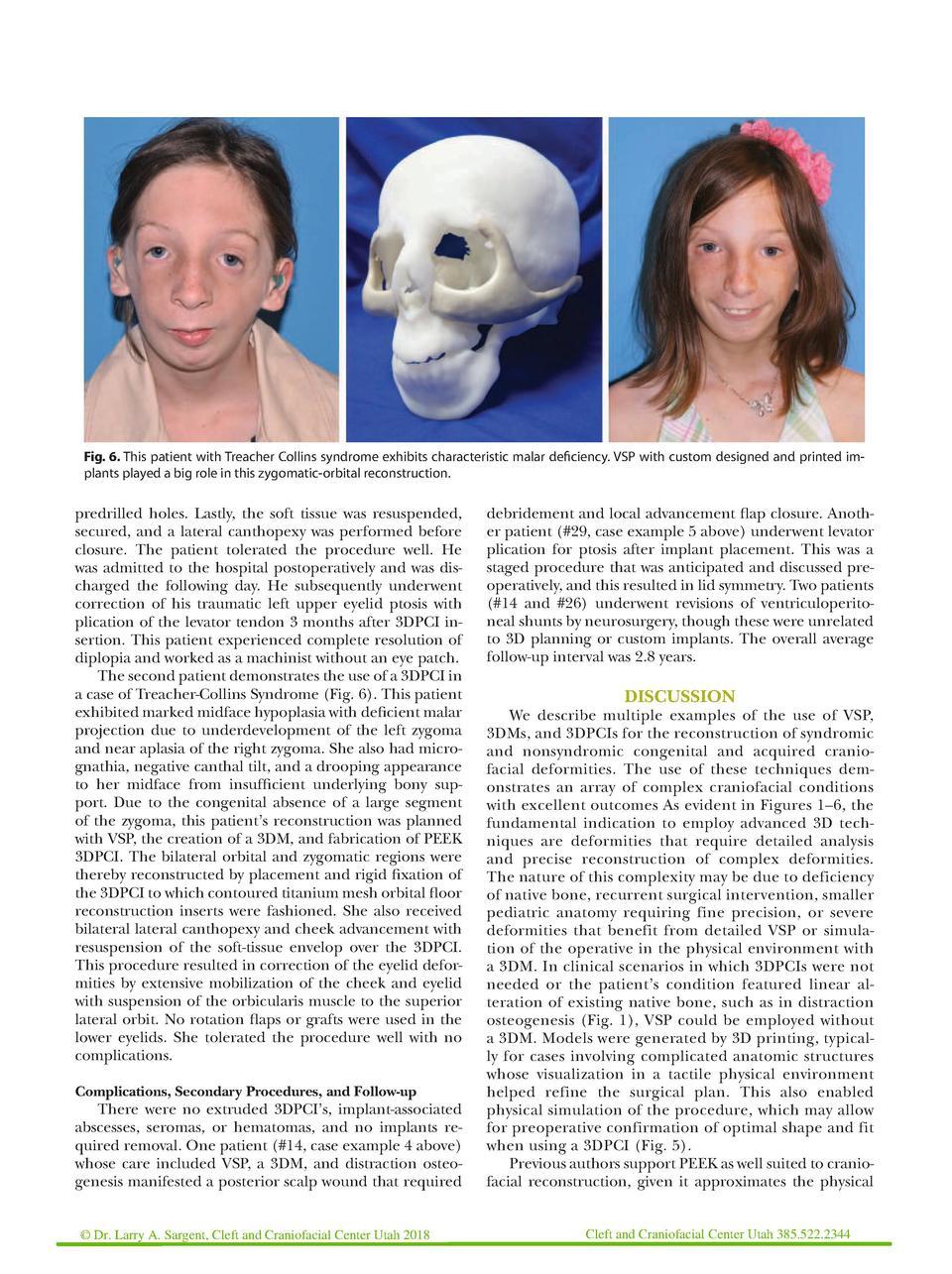 Sagittal Craniosysnostosis 2018 : simplebooklet com